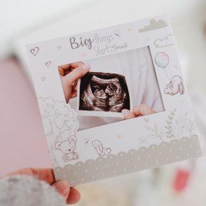 Xαριτωμένο καδράκι απο την Hugs & Kisses για να φυλάξετε τον πρώτο υπερήχο του μωρού σας.